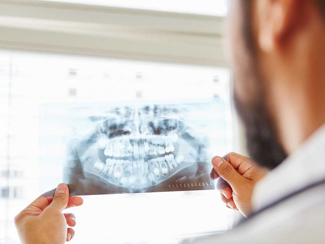Idaho Oral & Maxillofacial Surgery has your trusted expert for major and minor bone grafting