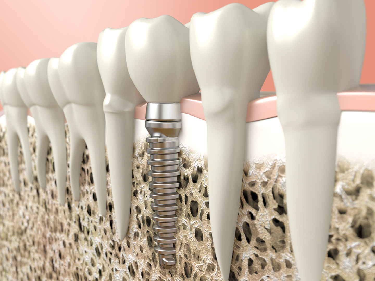 With Dental Implants From Idaho Oral & Maxillofacial Surgery...